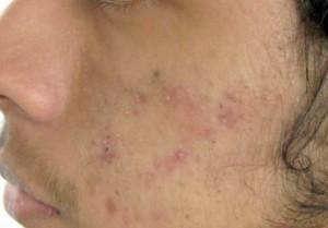 acné-tratamiento-del-acné